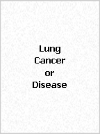 Click here to find pearl handcrafted awareness jewelry for Lung Cancer or Disease.